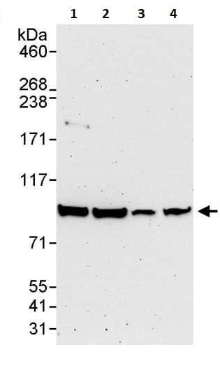 Western blot - Anti-IKK beta antibody (ab264239)