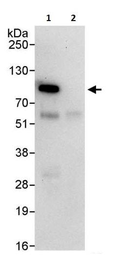 Immunoprecipitation - Anti-IKK beta antibody (ab264239)