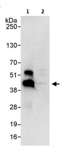 Immunoprecipitation - Anti-IKB beta antibody (ab264240)