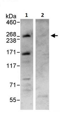Immunoprecipitation - Anti-Dicer antibody (ab264250)