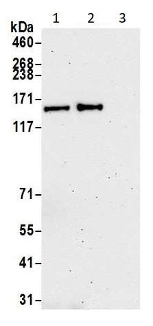 Immunoprecipitation - Anti-FANCA/FAA antibody (ab264257)