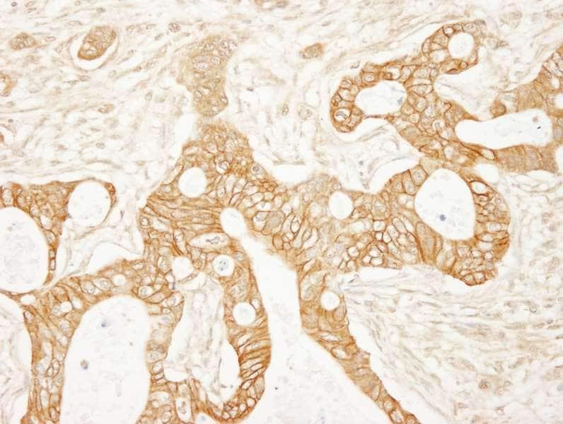 Immunohistochemistry (Formalin/PFA-fixed paraffin-embedded sections) - Anti-beta Catenin antibody (ab264262)