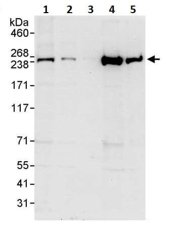 Western blot - Anti-non-muscle Myosin IIB/MYH10 antibody (ab264267)