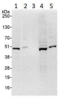 Western blot - Anti-GSK3 beta antibody (ab264268)