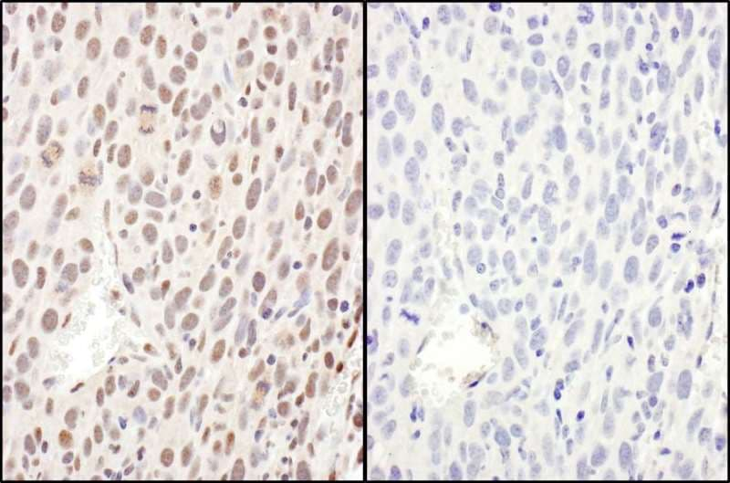 Immunohistochemistry (Formalin/PFA-fixed paraffin-embedded sections) - Anti-NF-kB p65 antibody (ab264271)