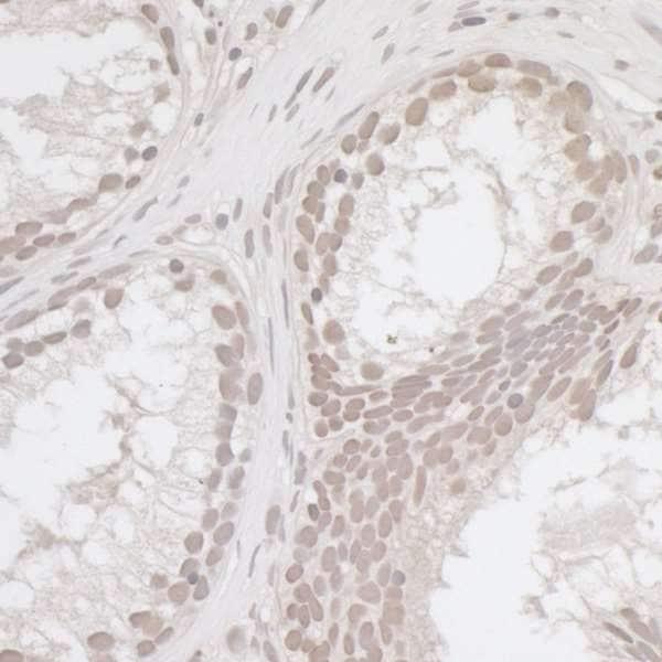Immunohistochemistry (Formalin/PFA-fixed paraffin-embedded sections) - Anti-E2F4 antibody (ab264276)