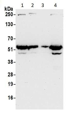 Western blot - Anti-E2F4 antibody (ab264276)