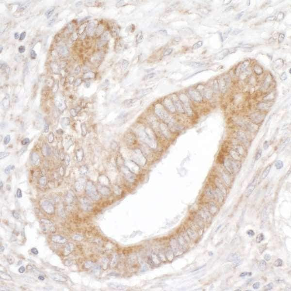 Immunohistochemistry (Formalin/PFA-fixed paraffin-embedded sections) - Anti-ITPR3 antibody (ab264282)