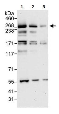 Western blot - Anti-ITPR3 antibody (ab264283)
