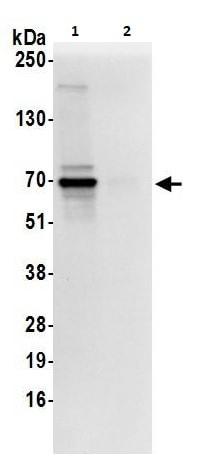 Immunoprecipitation - Anti-AKT2 antibody (ab264288)