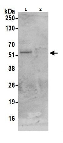 Immunoprecipitation - Anti-Cbx6 antibody (ab264289)