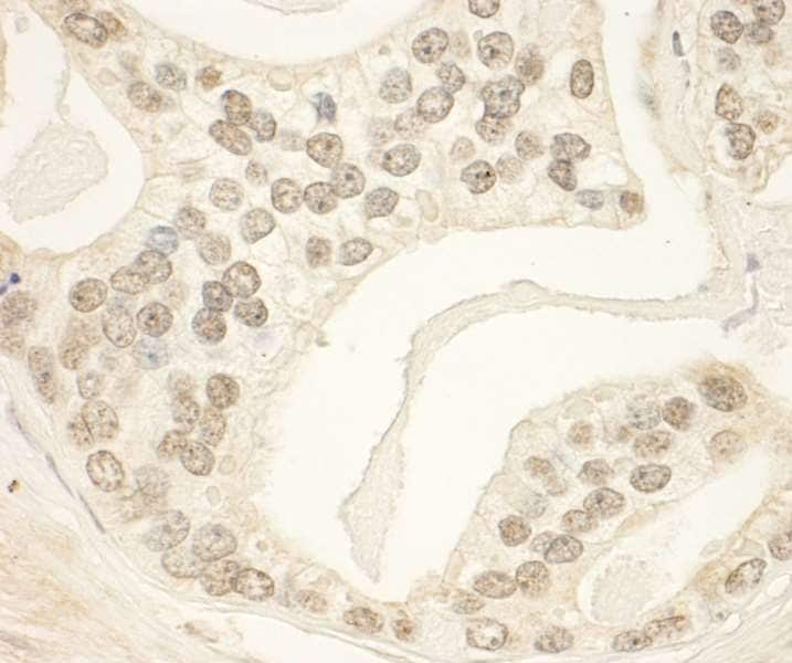 Immunohistochemistry (Formalin/PFA-fixed paraffin-embedded sections) - Anti-PHF23 antibody (ab264292)