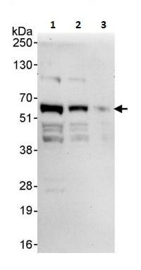 Western blot - Anti-PHF23 antibody (ab264292)