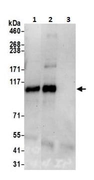 Immunoprecipitation - Anti-BRD1/BRL antibody (ab264293)
