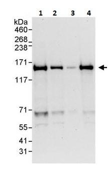 Western blot - Anti-Carma 1/CARD11 antibody (ab264296)
