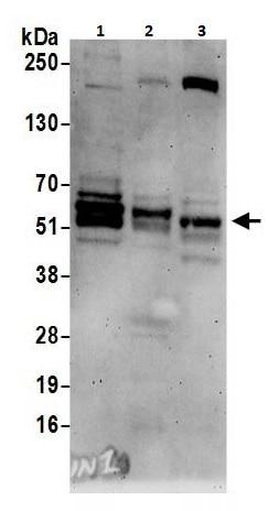 Western blot - Anti-BIN1 antibody (ab264303)