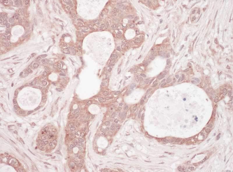 Immunohistochemistry (Formalin/PFA-fixed paraffin-embedded sections) - Anti-SQSTM1 / p62 antibody (ab264313)