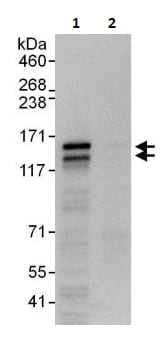 Immunoprecipitation - Anti-RTN3/HAP antibody (ab264314)