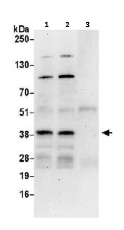 Immunoprecipitation - Anti-ATF1 antibody (ab264316)