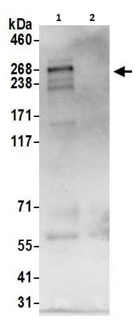 Immunoprecipitation - Anti-GIV antibody (ab264317)