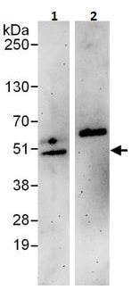 Immunoprecipitation - Anti-Dysbindin antibody (ab264320)
