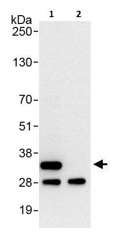 Immunoprecipitation - Anti-RPS2 antibody (ab264336)