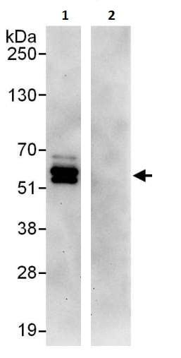 Immunoprecipitation - Anti-PPP2R5C antibody (ab264337)