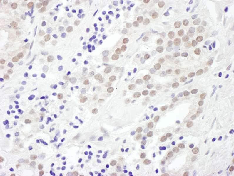 Immunohistochemistry (Formalin/PFA-fixed paraffin-embedded sections) - Anti-EXOSC10/RRP6 antibody (ab264343)