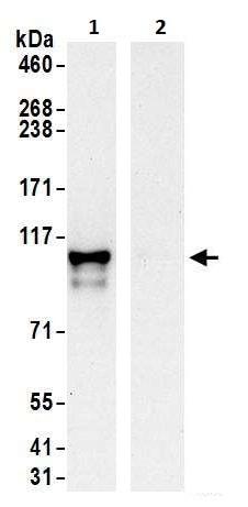 Immunoprecipitation - Anti-EXOSC10/RRP6 antibody (ab264343)