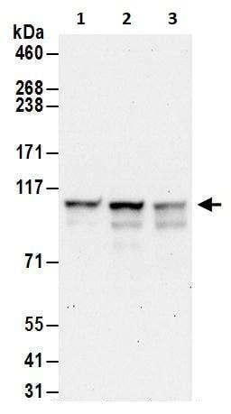 Western blot - Anti-EXOSC10/RRP6 antibody (ab264343)