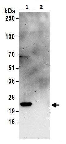 Immunoprecipitation - Anti-RPS5 antibody (ab264346)