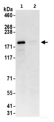 Immunoprecipitation - Anti-SHANK3 antibody (ab264348)