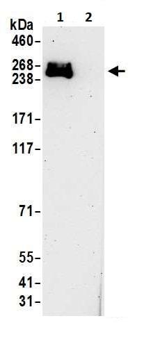 Immunoprecipitation - Anti-RNA polymerase II antibody (ab264350)