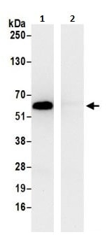 Immunoprecipitation - Anti-TCP1 delta antibody (ab264353)
