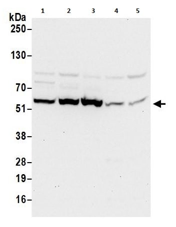 Western blot - Anti-TCP1 delta antibody (ab264353)