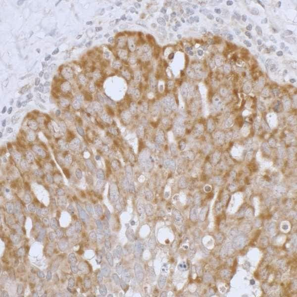 Immunohistochemistry (Formalin/PFA-fixed paraffin-embedded sections) - Anti-Peroxiredoxin 3/PRDX3 antibody (ab264354)
