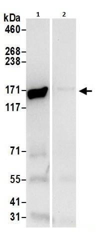 Immunoprecipitation - Anti-Isoleucyl tRNA synthetase antibody (ab264355)