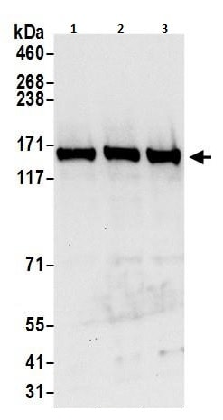 Western blot - Anti-Isoleucyl tRNA synthetase antibody (ab264355)