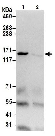 Immunoprecipitation - Anti-Isoleucyl tRNA synthetase antibody (ab264356)