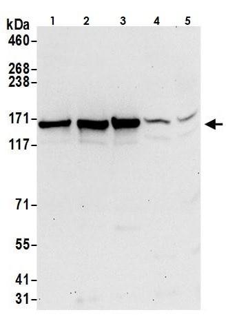 Western blot - Anti-Isoleucyl tRNA synthetase antibody (ab264356)