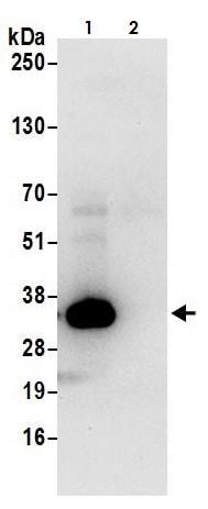 Immunoprecipitation - Anti-Lactate Dehydrogenase B/LDH-B antibody (ab264358)