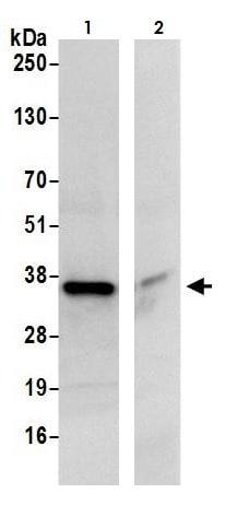 Immunoprecipitation - Anti-CBR1 antibody (ab264359)