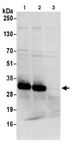 Western blot - Anti-CBR1 antibody (ab264360)