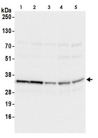 Western blot - Anti-RPS3A antibody (ab264367)