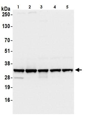 Western blot - Anti-RPS3A antibody (ab264368)