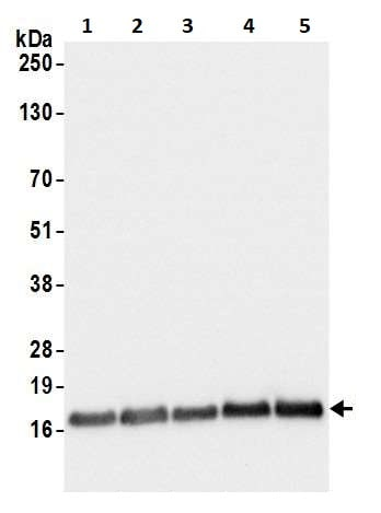 Western blot - Anti-RPL23 antibody (ab264369)