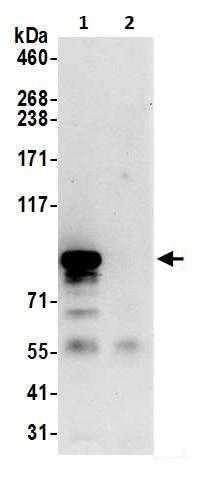 Immunoprecipitation - Anti-Mitofilin antibody (ab264372)