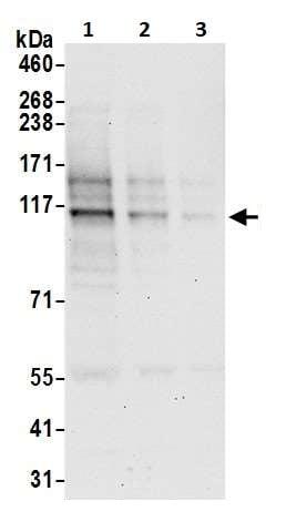 Western blot - Anti-RPGR antibody (ab264373)
