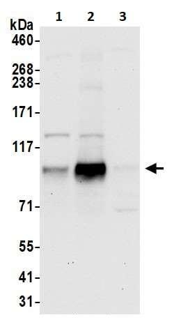 Western blot - Anti-YTHDC1 antibody (ab264375)