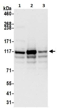 Western blot - Anti-HIP1 antibody (ab264376)
